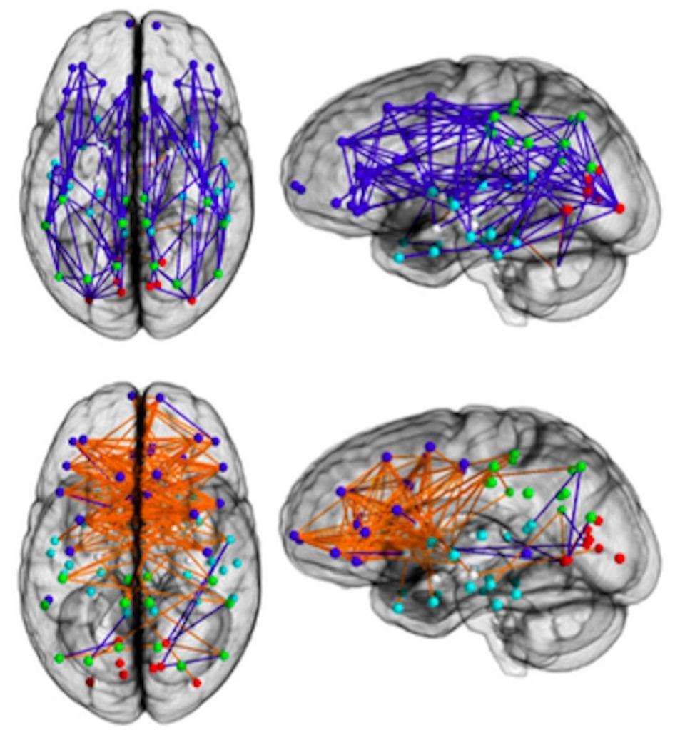 Fig. 1 cervello di uomo e di donna - funzionamento